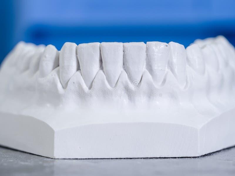 Weiße Form zahnmedizinisch vom Gips lizenzfreie stockfotografie