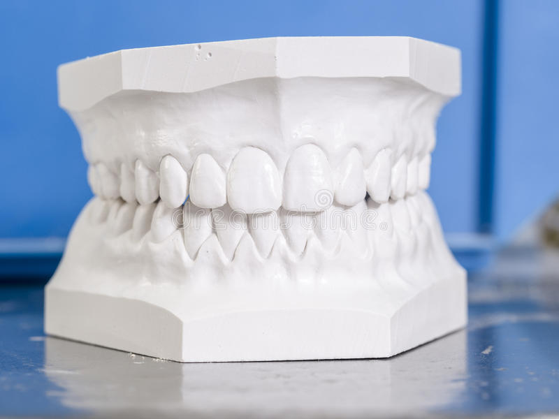 Weiße Form zahnmedizinisch vom Gips stockfoto