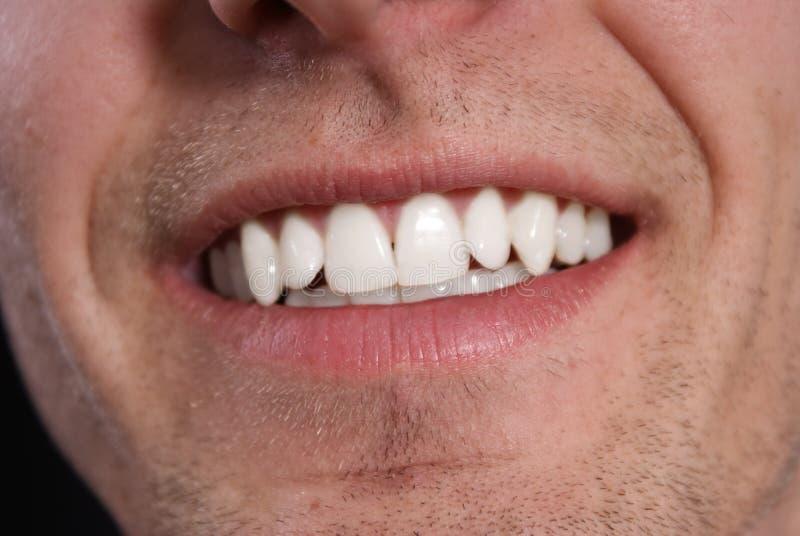 Weiße Zähne stockbilder