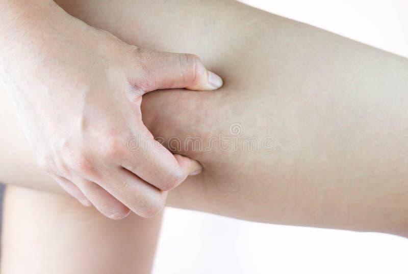Weibliche Beinschenkel mit Cellulite Hautproblem, Körperpflege, vorbei lizenzfreie stockfotos