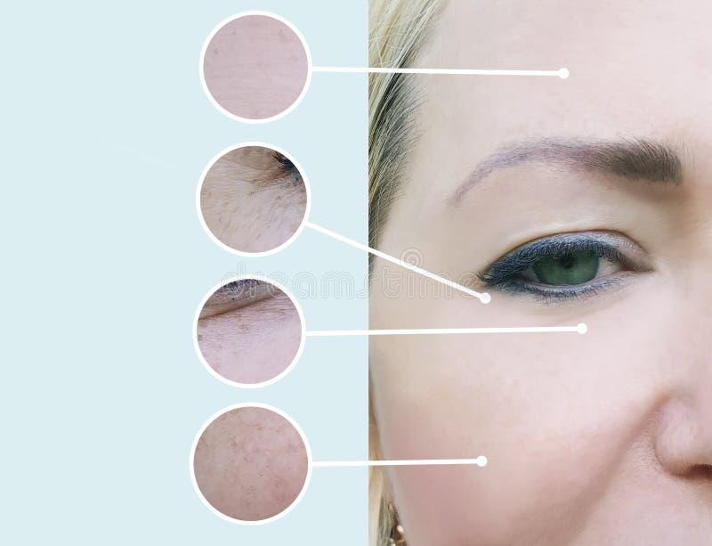 Weibliche Falten vor und nach Kosmetikertherapie-Verfahrenscollage lizenzfreies stockbild