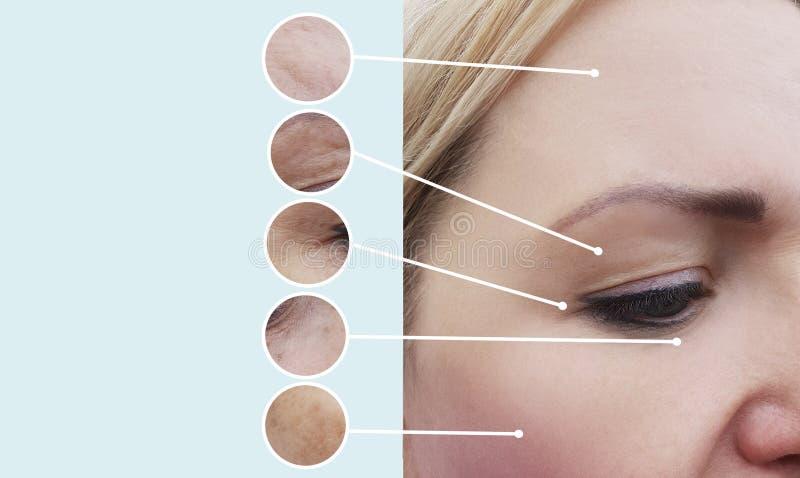 Weibliche Falten vor und nach Kosmetikertherapieverfahren lizenzfreie stockfotos