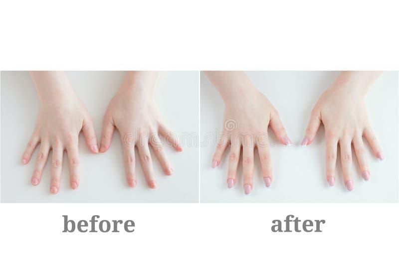 Weibliche Maniküre Vorher und nachher Mädchenhände auf weißem Hintergrund stockbilder