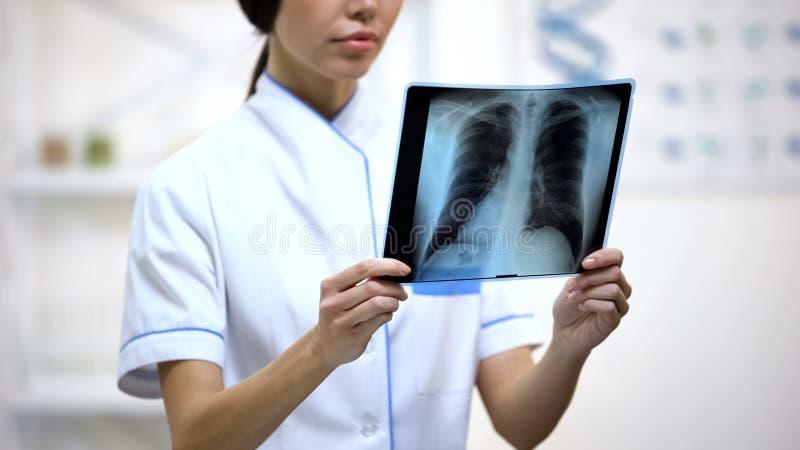 Weiblicher Arzt, der aufmerksam Lungen Röntgenstrahl, Risiko der Bronchitis, Gesundheit betrachtet lizenzfreies stockfoto