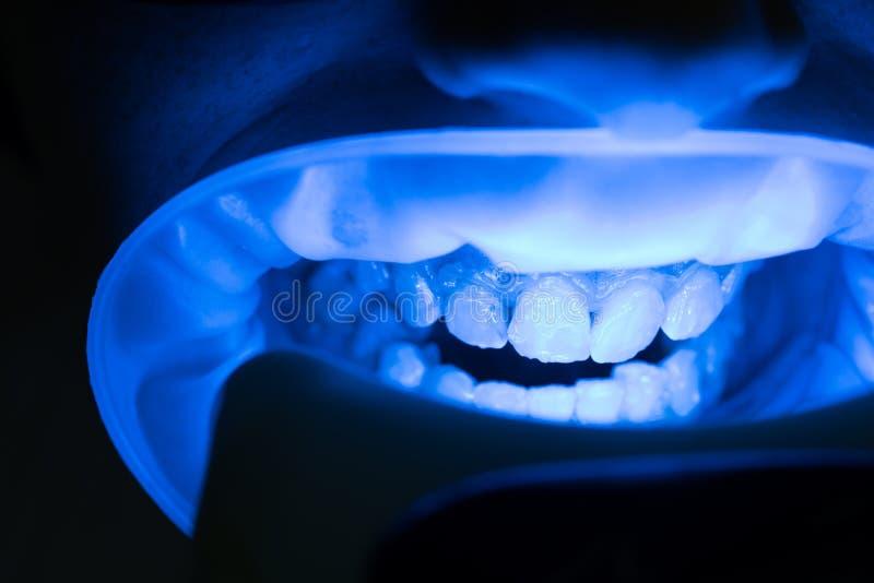 Weiblicher Patient am Zahnarzt in der Klinik Leute-, Medizin-, Stomatologie- und Gesundheitswesenkonzept - Abschluss oben des wei lizenzfreies stockfoto