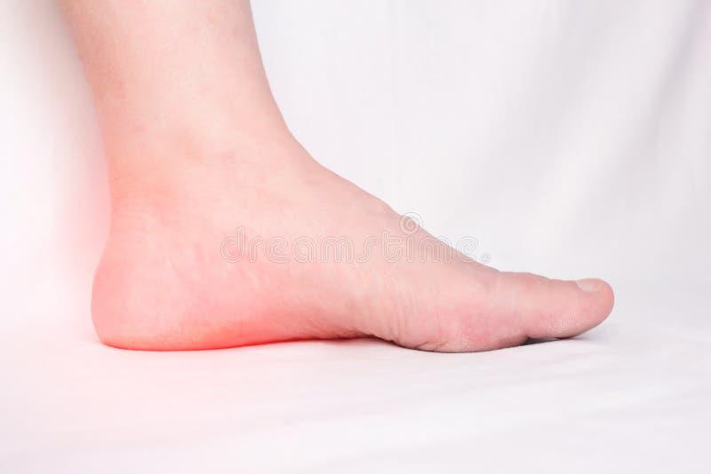 Weibliches Bein mit einer wunden Ferse mit einem Fersensporn, einer Spitze und einem osteoite in der Ferse, Schmerz, Nahaufnahme, stockbild