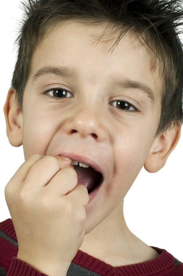 Weinig jongen toont een gebroken tand stock afbeeldingen