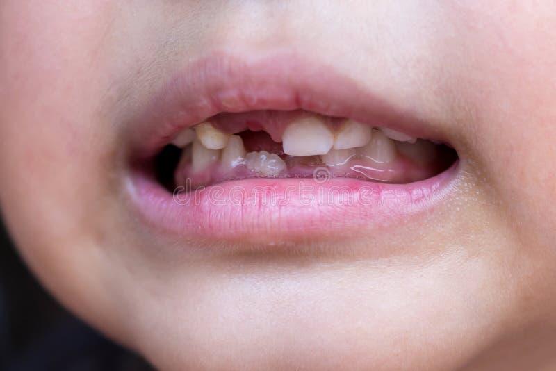 Weinig kind en gebroken tanden royalty-vrije stock fotografie