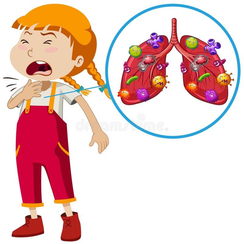 Wektor dziewczyny płuca infekcja ilustracja wektor