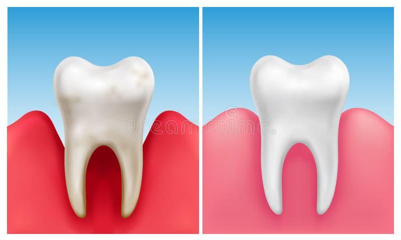 Wektorowa ilustracja gumowa choroba - periodontitis wewnątrz porównuje z zdrowym białym zębem ilustracja wektor