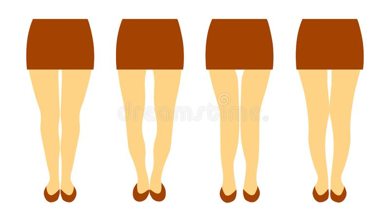 Wektorowa ilustracja z różnymi kształtami kobiety iść na piechotę ilustracji