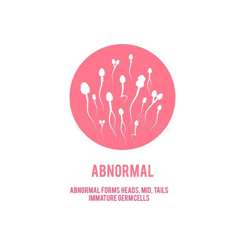 Wektorowej anormalnej spermy plenno?ci poj?cia m?ska ikona ilustracji
