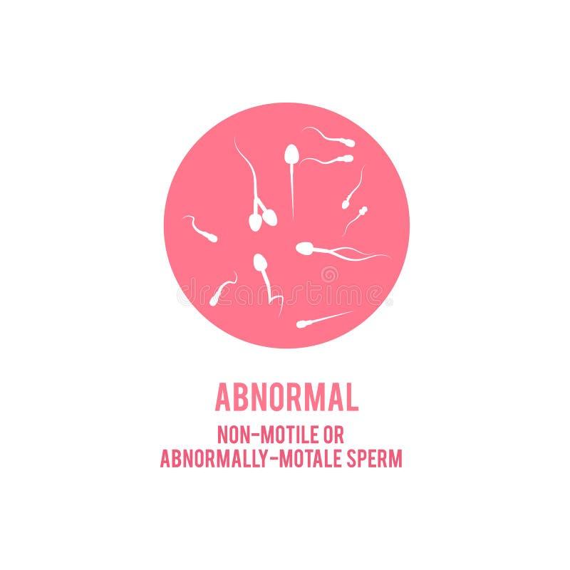Wektorowej anormalnej spermy plenno?ci poj?cia m?ska ikona royalty ilustracja