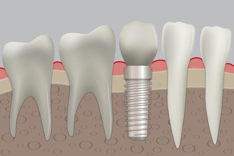 Wektorowi normalni zęby i stomatologiczny wszczep ilustracja wektor