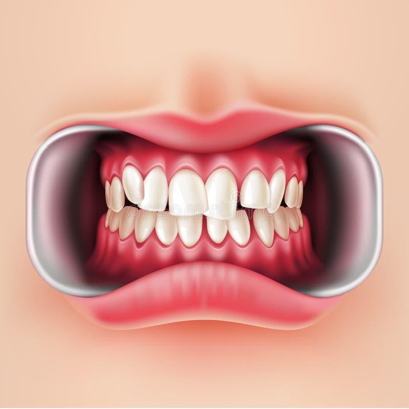 Wektorowi stomatologiczni brasy, oralny brakets system 3d ilustracja wektor