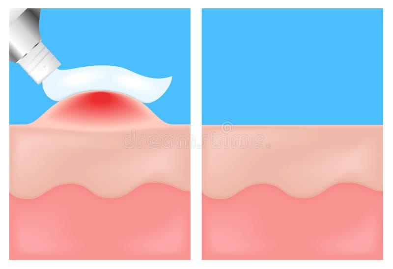 Wenden Sie eine Medizin an einer entflammenshaut, Hautkrankheiten an lizenzfreie abbildung