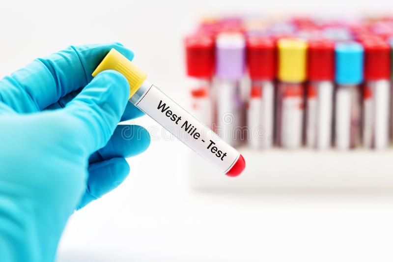 West Nile virus test. Blood sample tube for West Nile virus test stock image