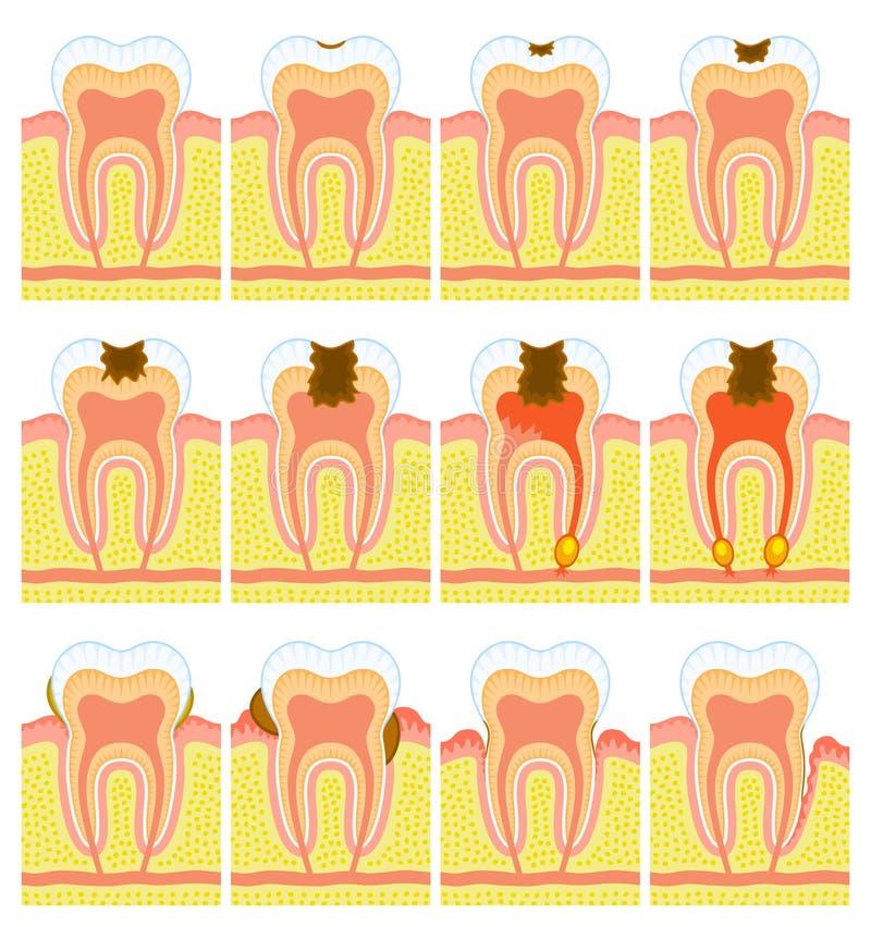 wewnętrznej struktury ząb royalty ilustracja