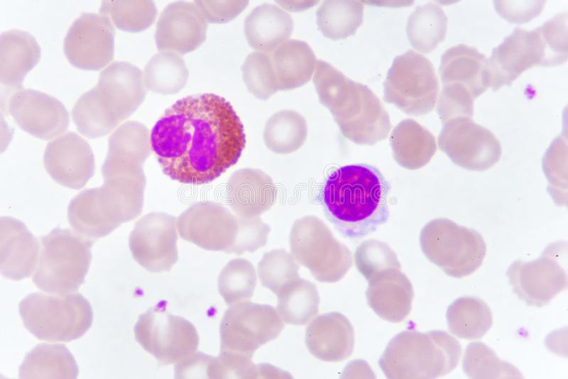 White blood cells in blood smear royalty free stock image
