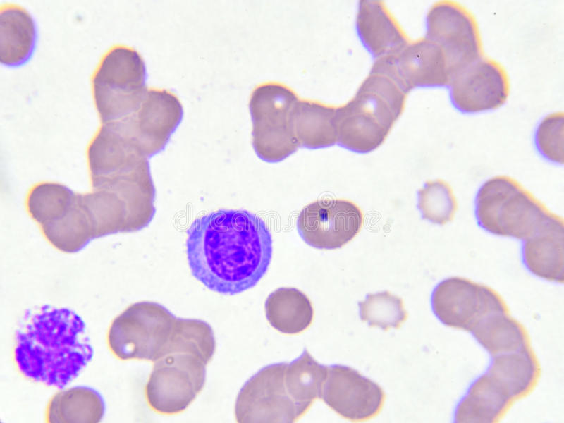 White blood cells. In blood smear, analyze by microscope stock photography