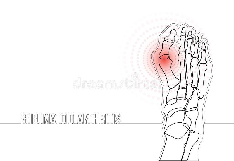 Rheumatoid arthritis continuous line drawing concept banner. White horizontal rheumatoid arthritis continuous line drawing concept banner. Linear bones joints of royalty free illustration