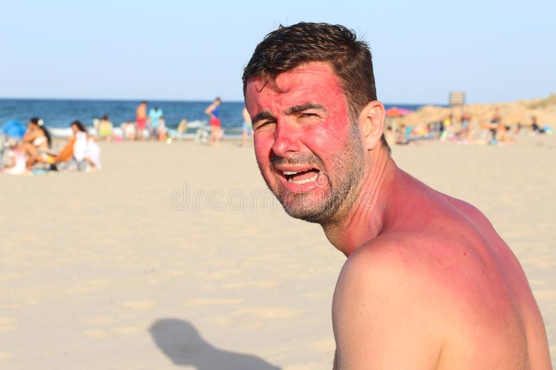 White man at the beach during heatwave.  stock images