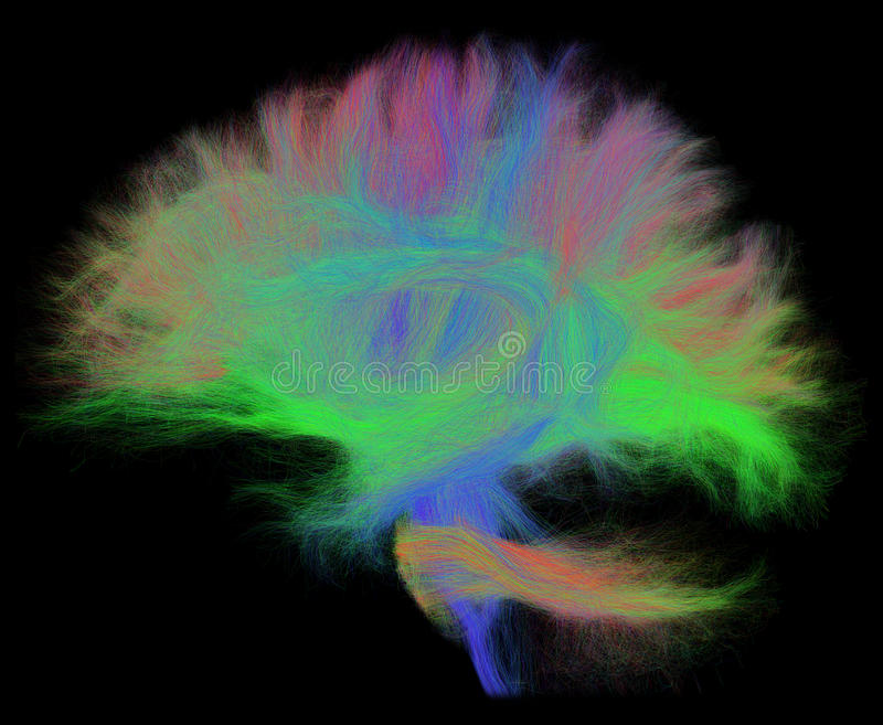 White Matter Tractography of the Human Brain in Sagittal View. The image was produced using diffusion-weighted magnetic resonance imaging tractography stock image