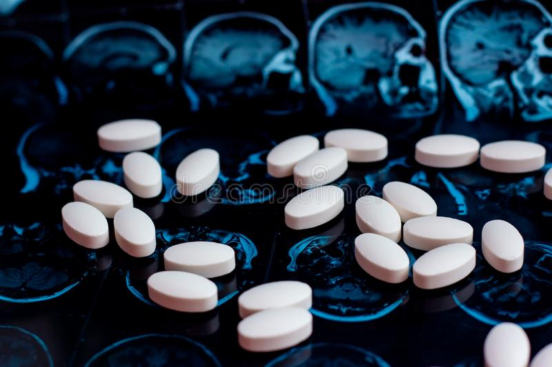 White pharmaceutical medicine pills on magnetic brain resonance scan mri background. Pharmacy theme, health care royalty free stock photos