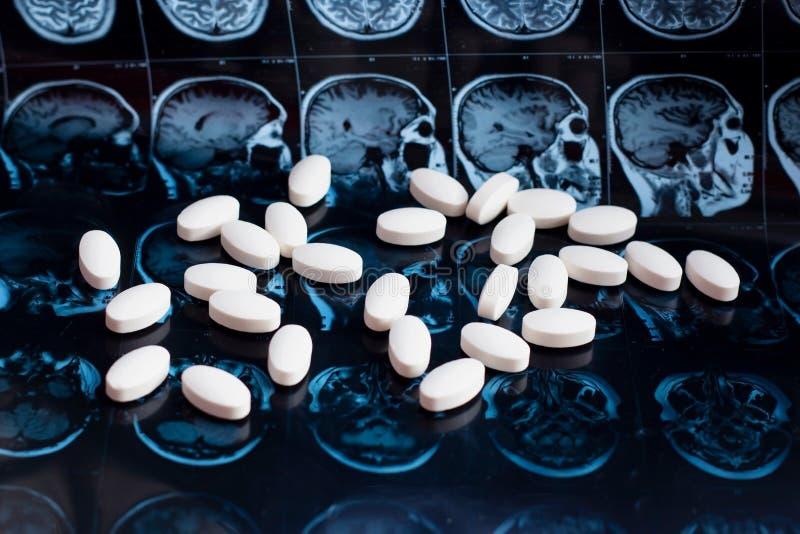 White pharmaceutical medicine pills on magnetic brain resonance scan mri background. Pharmacy theme, health care. Drug prescription for tumor, alzheimer stock photos