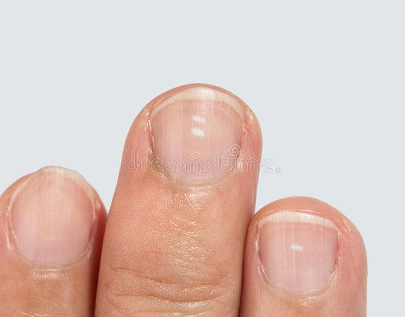 White spots on fingernails. On white background stock image