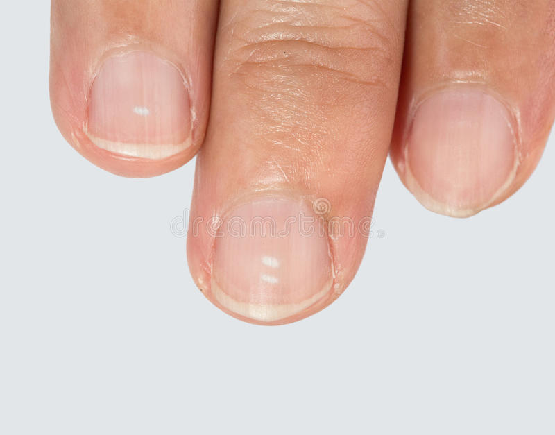 White spots on fingernails. White spots on fingernails caused by a calcium deficiency royalty free stock images