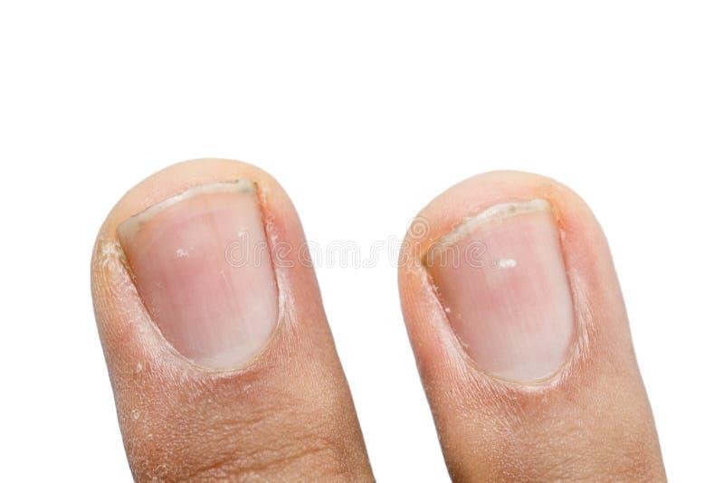 White spots on fingernails. Isolated on white stock photo