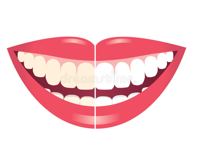 Whitening av tänder stock illustrationer