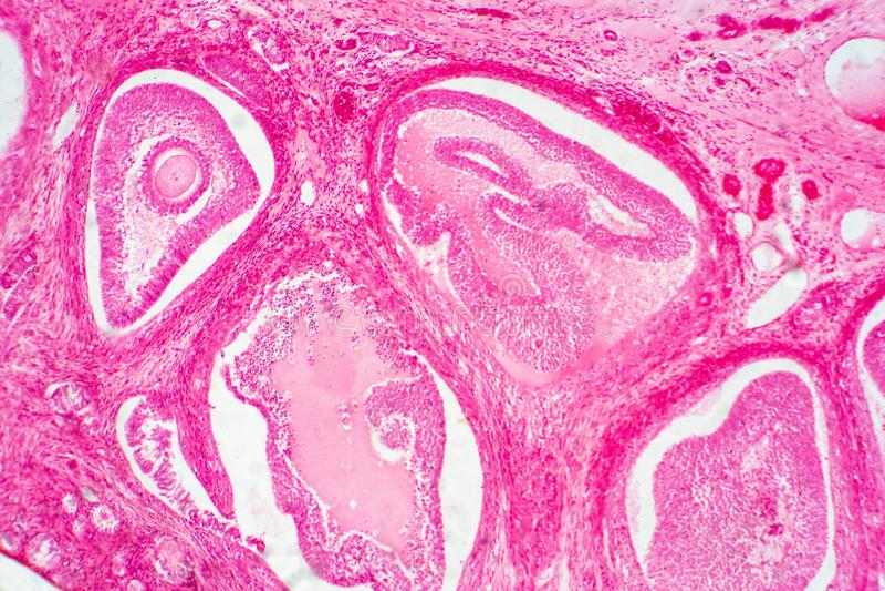 ?wiat?o - mikroskopijny ludzki jajnik pokazuje pocz?tkowych i drugorz?dnych follicles zdjęcia stock