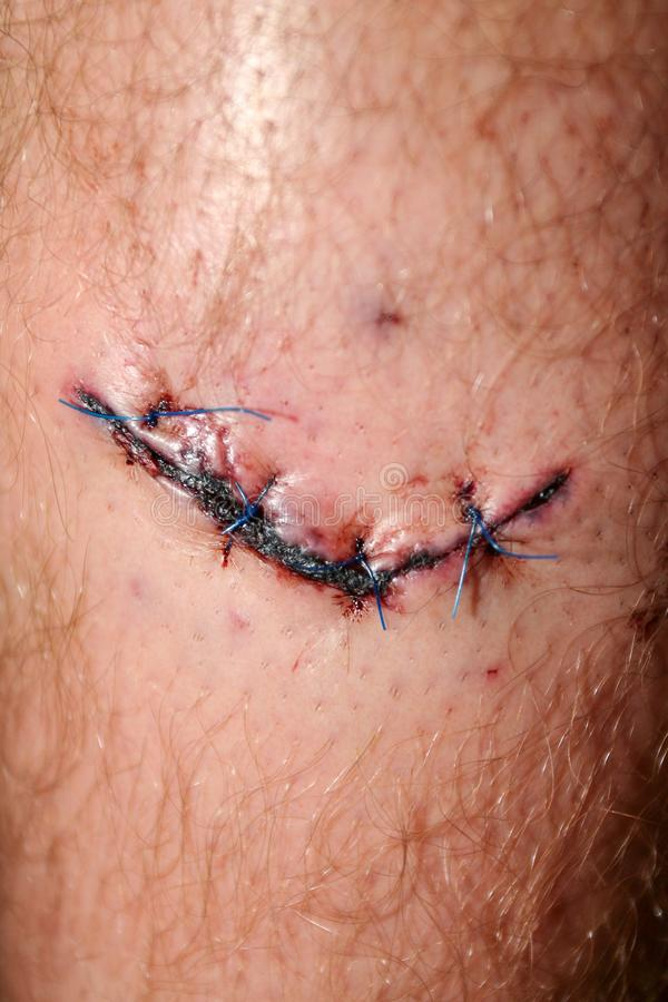 Wide fresh blooded injury wound on the leg. stock image