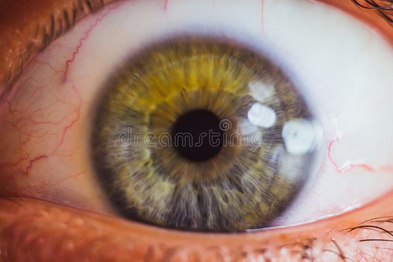 Wide open human eye with bright red arteries close up. irritation and redness of the eyeball. pupils, iris, eyelashes in macro.  royalty free stock image