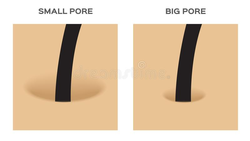Wide and small hair follicle , pore . skin. / white background royalty free illustration