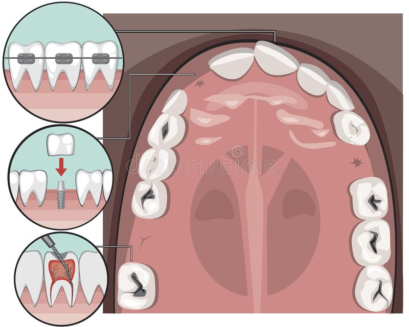 Widok z góry na zęby i siekacze na żuchwie przed wizytą u dentysty lub ortodonta, ilustracja z udziałem nosicieli ilustracji