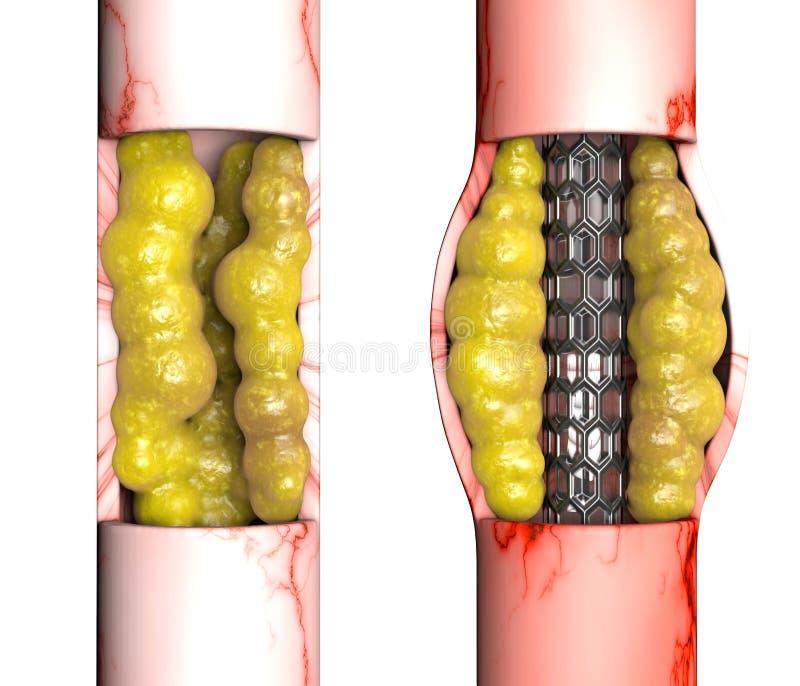 Wieńcowej arterii obwodnicy operacja, jest chirurgicznie procedurą wznawiać normalnego przepływ krwi zagrodzona wieńcowa arteria royalty ilustracja