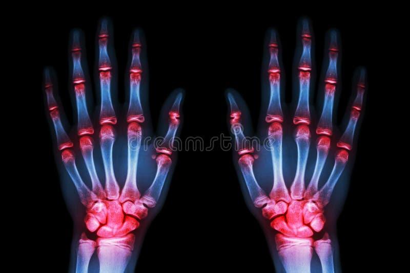 Wielokrotność łączny artretyzm oba ręki na czarnym tle (podagra, Rheumatoid) obrazy stock