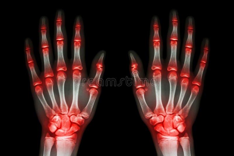 Wielokrotność łączny artretyzm oba ręki na czarnym tle (podagra, Rheumatoid) obraz royalty free