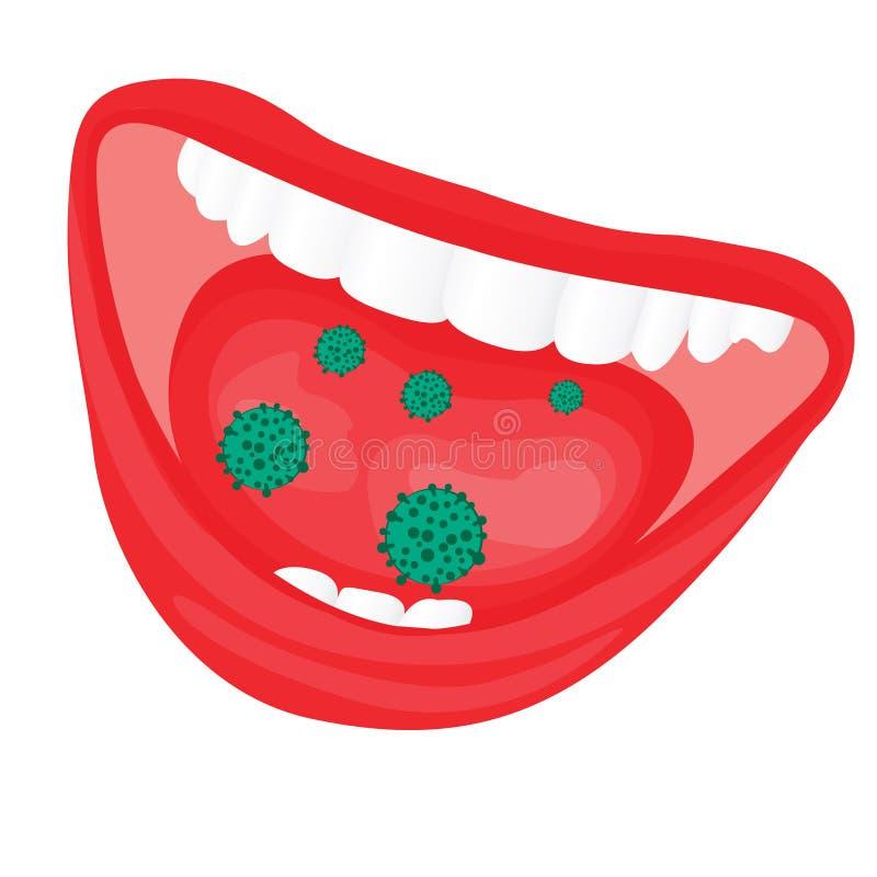 Wirusa bakteryjny porost w usta royalty ilustracja