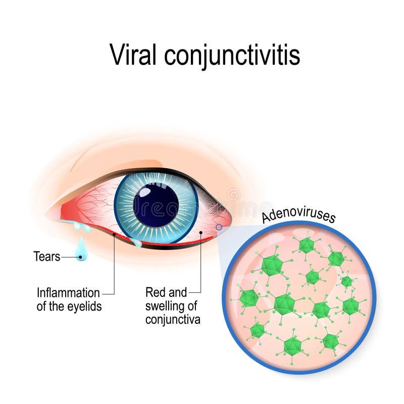 Wirusowy conjunctivitis ilustracja wektor