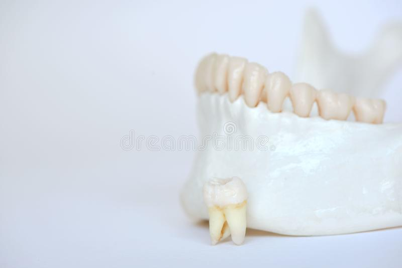 A wisdom molar tooth on human jaw model. An extracted wisdom molar tooth on human jaw model stock photography