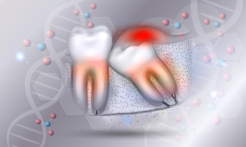 Wisdom tooth and inflamed gums stock illustration
