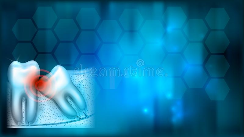 Wisdom tooth pain background royalty free illustration