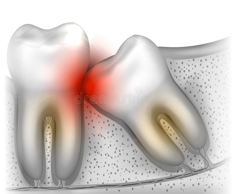 Wisdom tooth pain stock illustration