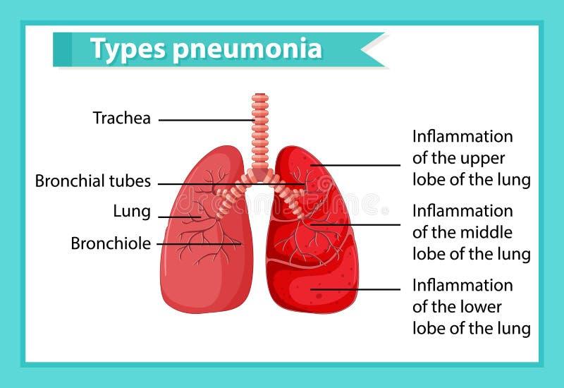 Wissenschaftliche medizinische Illustration der Pneumonie vektor abbildung