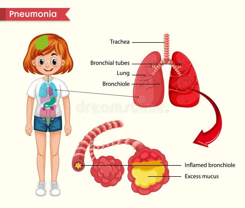 Wissenschaftliche medizinische Illustration des Pneumoniekonzeptes vektor abbildung