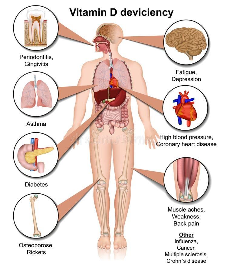 Witaminy d deviciency ciało wykonuje medyczną ilustrację na białym tle ilustracja wektor